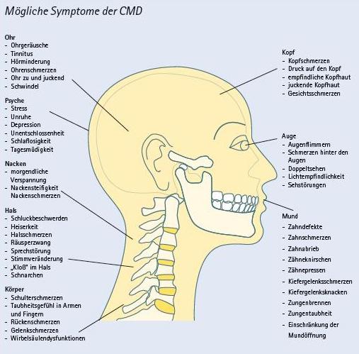 CMD craniomandibuläre Dysfunktionen Kiefergelenksschmerzen Kiefer